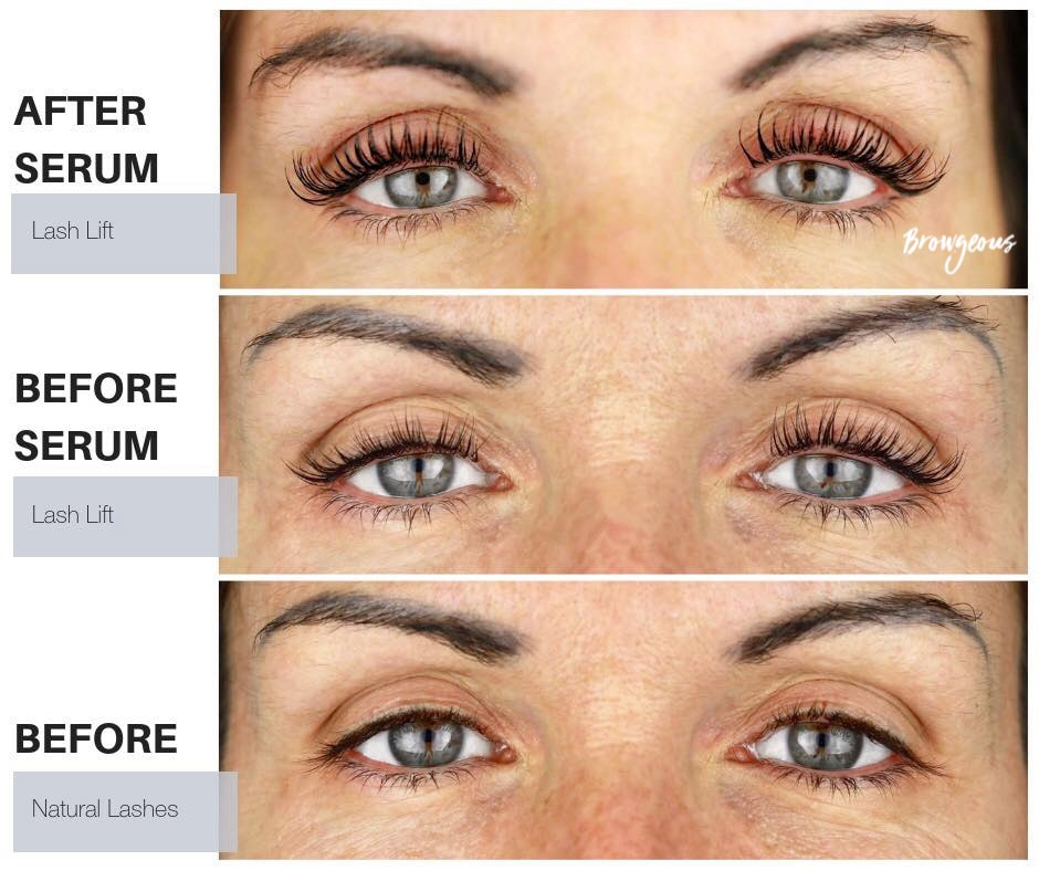 5e5fe7e3c22 Buy your EyEnvy lash growth serum ...
